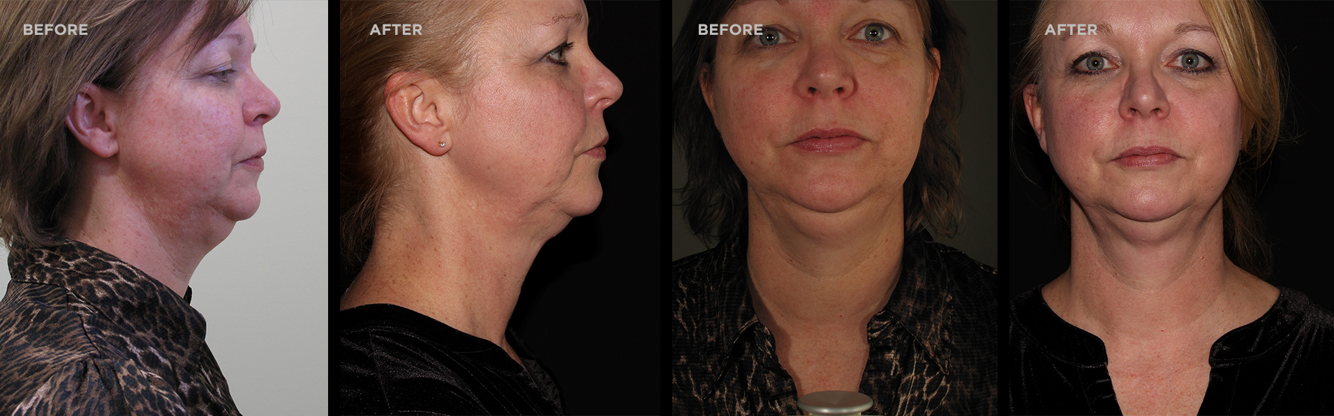 Before and after pictures of a woman after receiving treatment at New Image LSC.